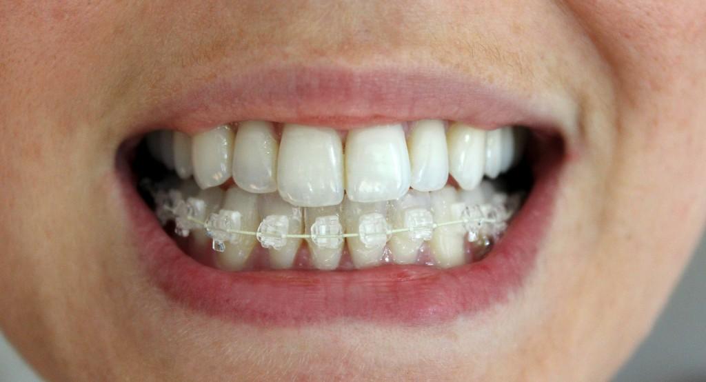 Bottom teeth braces
