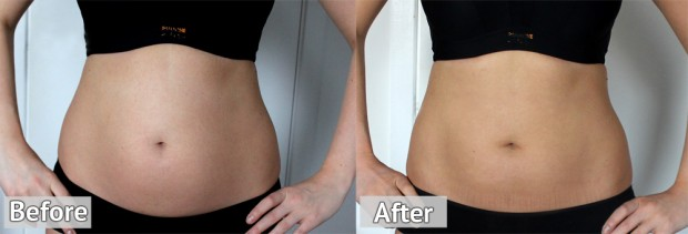 Slendertone Before and After Photo, Slendertone Connect Review